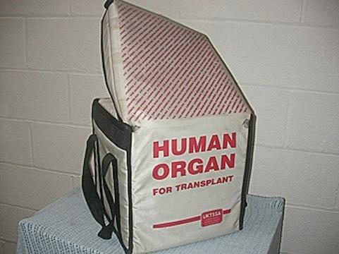 Что мешает трансплантологам