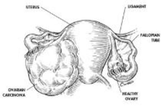 Женские гормоны вызывают рак