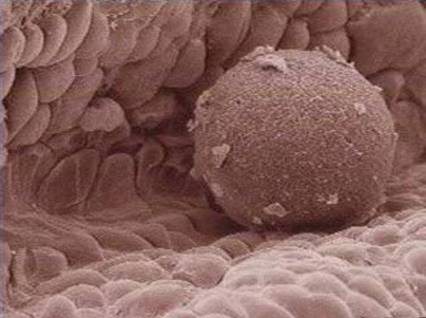 Донорство яйцеклеток: возможно всё