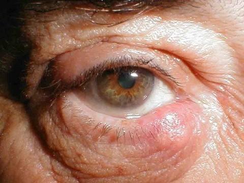 У американского врача нашли вирус Эбола в глазу