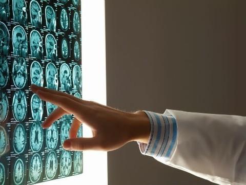 Скрининговые программы позволили на 70% увеличить диагностику онкологии у россиян