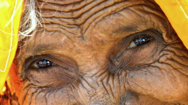 Морщины это не только возраст