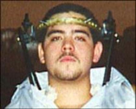Американские хирурги пришили 18-летнему юноше оторванную голову