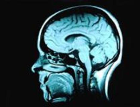 Новое лекарство спасет от последствий инсульта