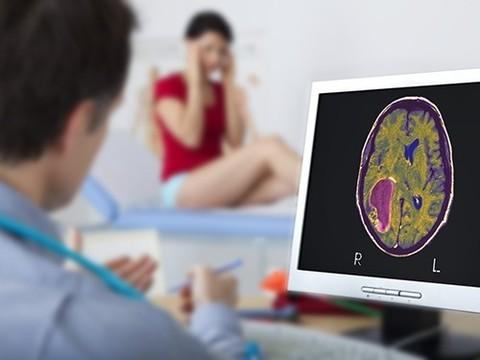 Найдены пять новых генетических факторов опухолей мозга