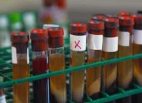 Англичане совершают прорыв в лечении кишечных инфекций