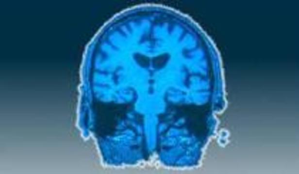 У оптимистов мозг работает иначе, чем у пессимистов