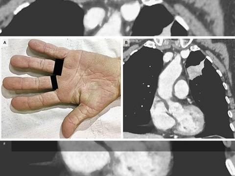 """""""Бархатистые"""" ладони помогли поставить диагноз рака легкого"""