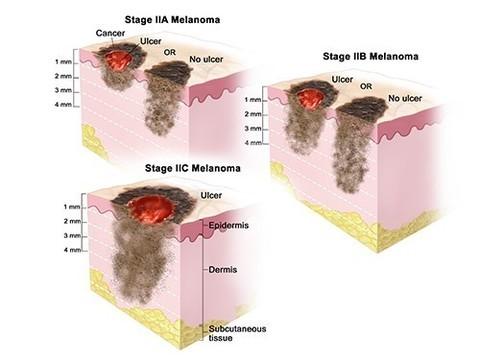 Ученые нашли причину, по которой рак становится устойчивым к иммунотерапии