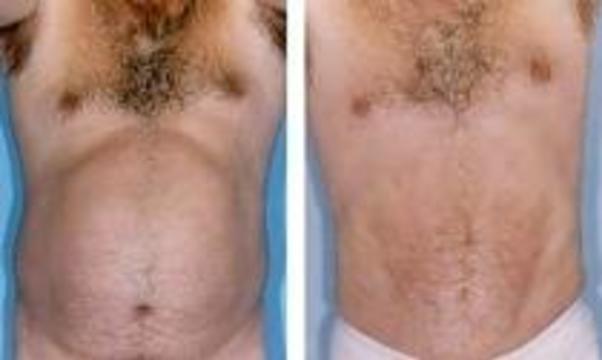 Необученный врач переключился с липосакции на восстановление волос
