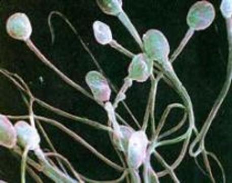 Воздержание ухудшает качество спермы