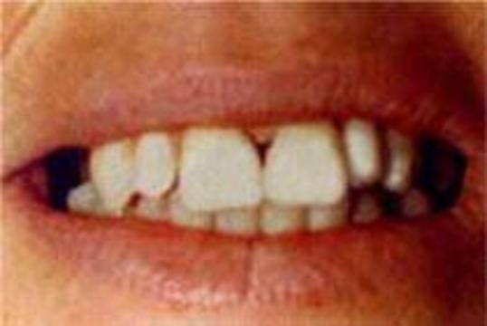 Регулярный уход за зубами предупреждает инсульт