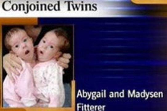 8-недельных сиамских близнецов [начали готовить к разделению в США]