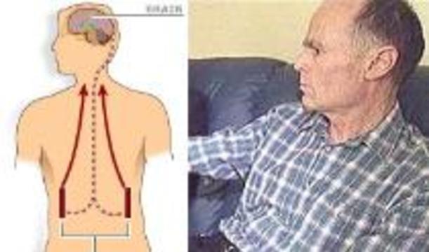 Болезнь Паркинсона вылечат насосами