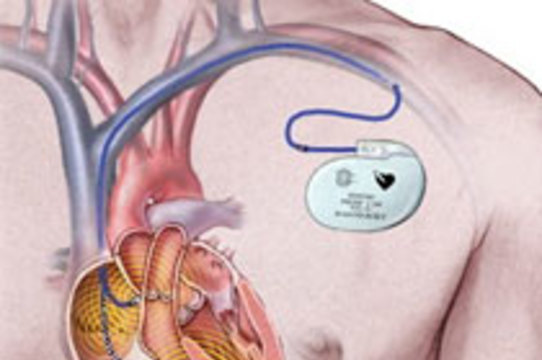 Американцы смогут завещать свои кардиостимуляторы [жителям развивающихся стран]
