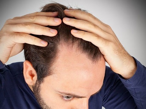 Выдергивание волос может стимулировать их рост при облысении
