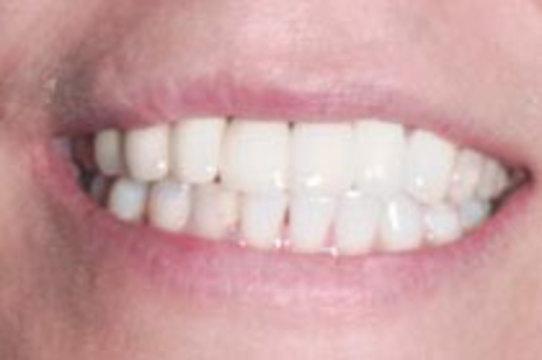 Отрастить новые зубы [поможет ультразвук]