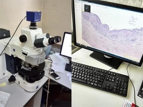 Для диагностики опухолей будут использовать новую цифровую систему российского производства