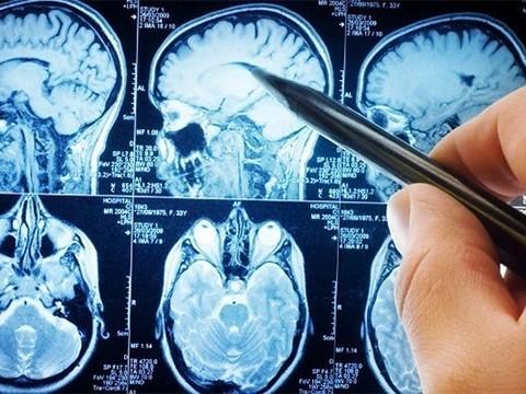 Испытания лекарства от Альцгеймера провалились
