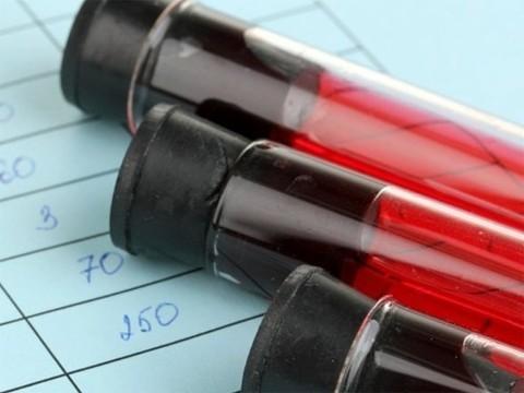 Ученые из Новосибирска разработали новый метод диагностики рака
