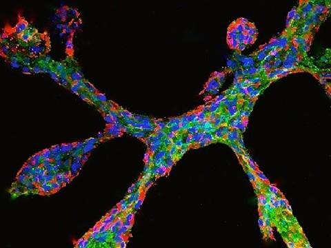 В лаборатории выращена «мини-грудь» из ткани молочной железы