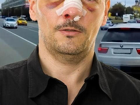 Водителю, не пропустившему «скорую», сломали нос
