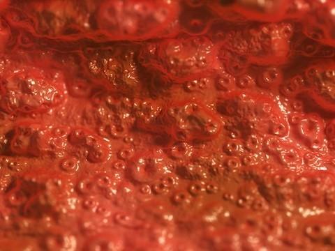 Врачи призывают к регулированию трансплантаций кала