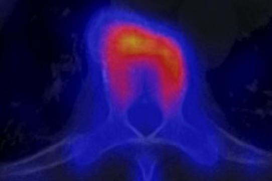 Замораживание опухоли облегчает боль при [метастазах рака в кости]
