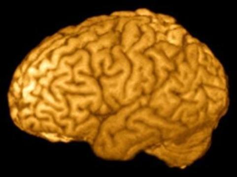 Аутизм будут диагностировать [с помощью МРТ мозга]