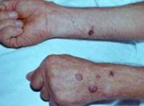 Вакцина от сибирской язвы убивает британских солдат