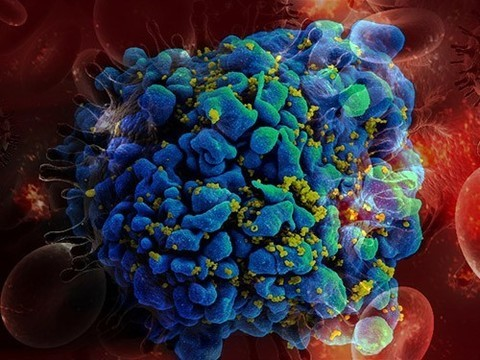 Пять важных вопросов о тестировании на ВИЧ