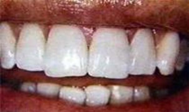 Не все пасты отбеливают зубы