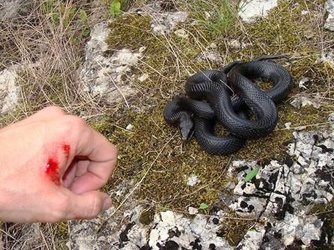 В мире кончаются запасы эффективного противоядия от змеиных укусов