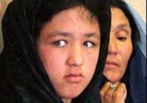 Девочка восемь лет носила в голове пулю