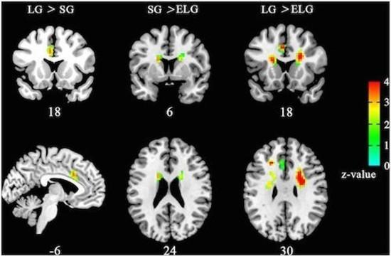 Китайские ученые нашли любовь на снимках МРТ