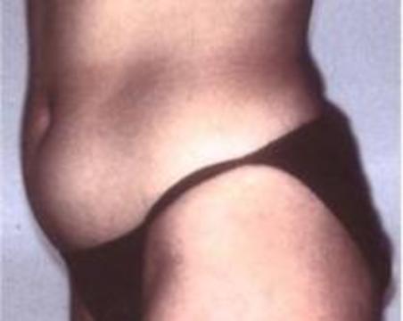 Липосакция не спасает от ожирения