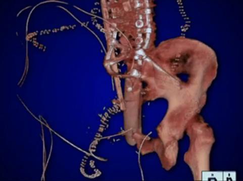 Хирурги вернули американцу способность ходить с помощью его [ампутированной ноги]