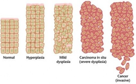 Перепост не нужен: бесплодие после прививки от вируса папилломы человека