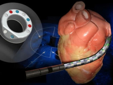 [Создан робот] для операций на бьющемся сердце