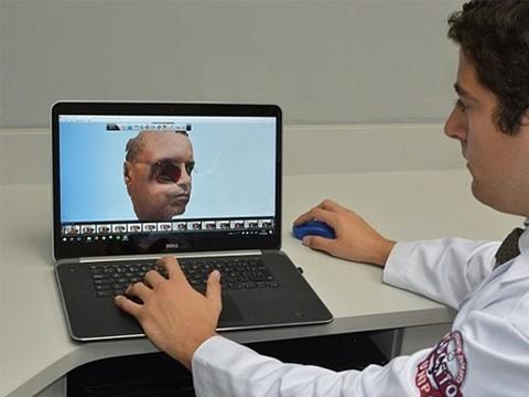 Для создания лицевого протеза впервые воспользовались смартфоном