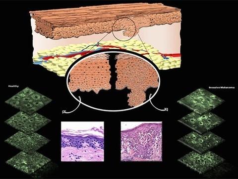Диагностировать меланому можно будет без биопсии