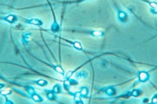 [Запрет на анонимность] не сократил число доноров спермы в Великобритании