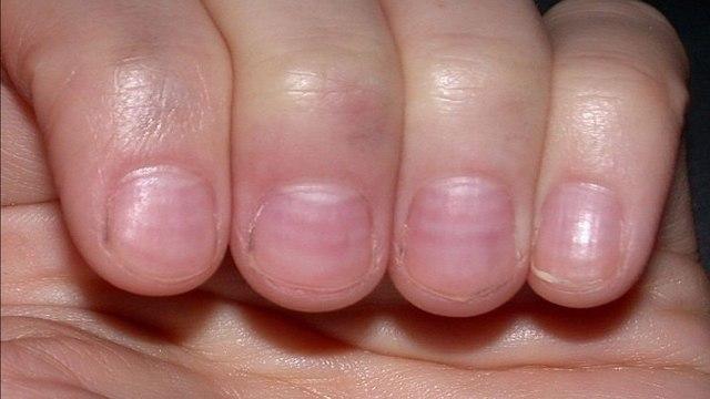 Полумесяцем или с уголками: как правильно стричь ногти?
