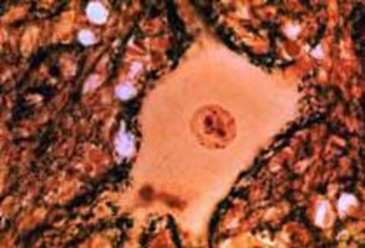 Людей будут лечить трупными клетками
