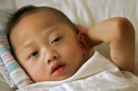 5-летний мальчик прожил с искусственным сердцем 8 месяцев
