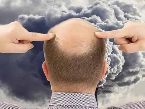 Загрязнение воздуха может оказаться причиной облысения