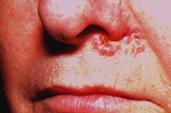 Крем излечивает рак кожи