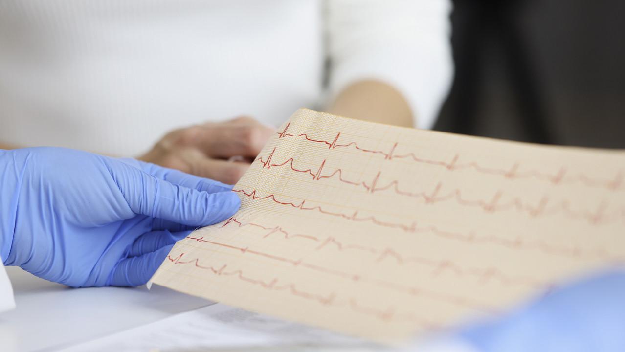 Красноярские хирурги устранили аритмию у пациента с донорским сердцем