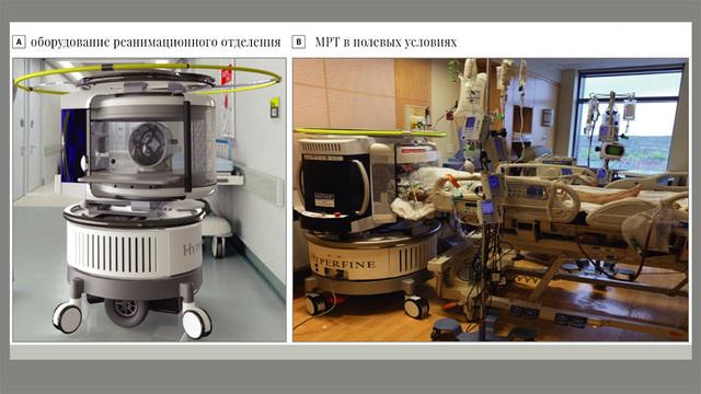 Первый портативный МРТ-сканер испытали на людях