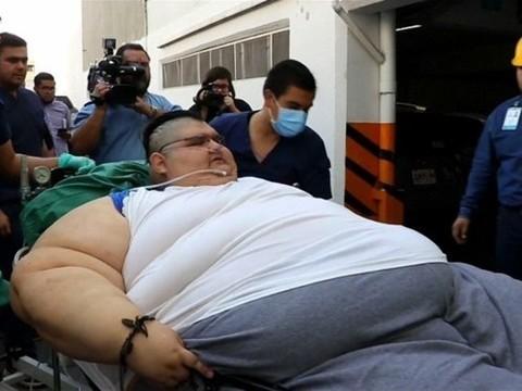 Самый толстый мужчина в мире успешно прооперирован